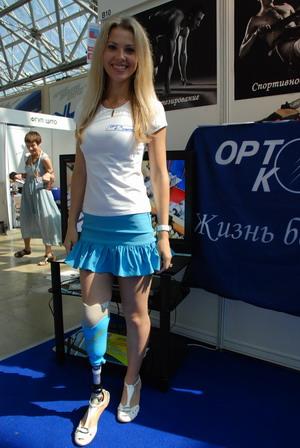 протезы для ног в украине: